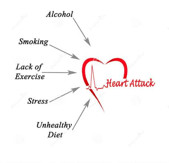 Causes of Heart Attacks